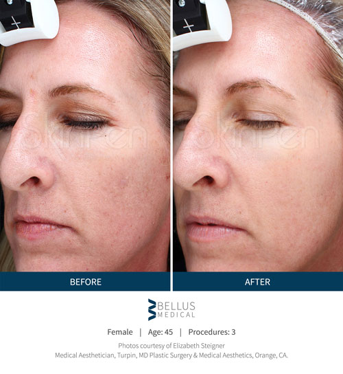 Chiropractic Brookfield WI Skin Pen Before and After Face