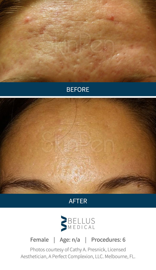 Chiropractic Brookfield WI Skin Pen Before and After